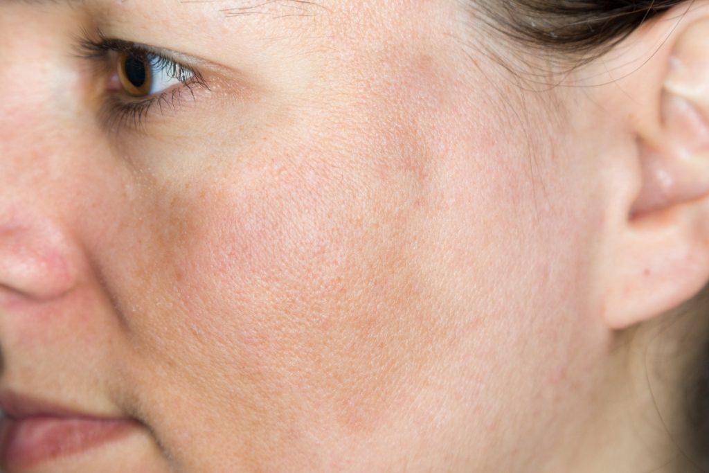כתמים חומים על העור